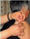 周女士 46岁 食管癌患者